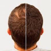 آیا میدانید مو با چه سرعتی رشد می کند؟