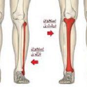 آیا میدانید استخوان های درشت نی ،نازک نی و ران کجای بدن قرار دارند؟
