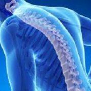 آیا میدانید نشانه های پوکی استخوان چیست؟