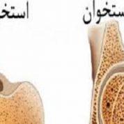 آیا میدانید پوکی استخوان در خانم ها چیست؟