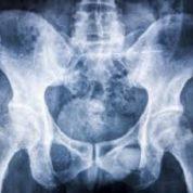 آیا میدانید برای جلوگیری از پوکی استخوان چه کار باید بکنیم؟