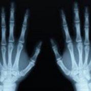 آیا میدانید اشعه ایکس چگونه از اشیا عبور می کند؟