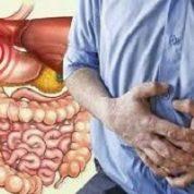 آیا میدانید چه کسانی به سندروم روده تحریک پذیر مبتلا می شوند؟